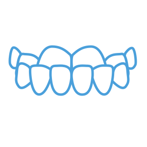 <strong>Underbite</strong> </br> <p class='formDescription'>Top teeth protrude over bottom teeth.</br></br></br></p>