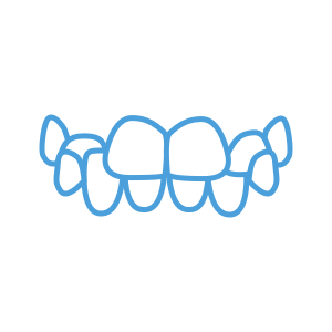 <strong>Crossbite</strong> </br> <p class='formDescription'>Upper teeth bite inside your lower teeth, on one or both sides of your jaw.</p>