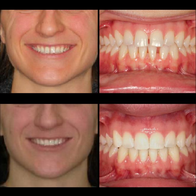 SS Case Study_ Case22_BeforeAfter