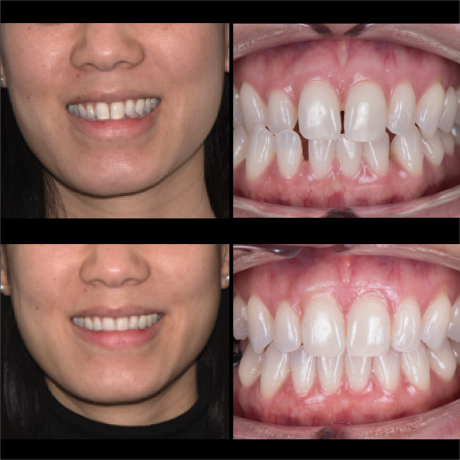 SS Case Study_Case 25_BeforeAfter