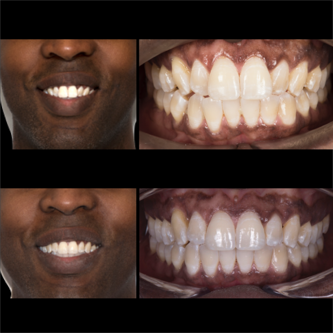 SS Case Study_Case 26_BeforeAfter