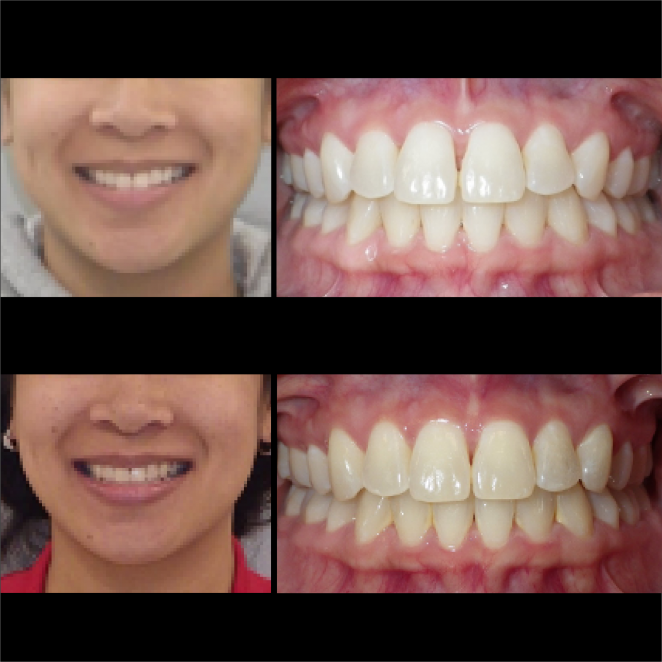 SS Case Study_Case 29_BeforeAfter